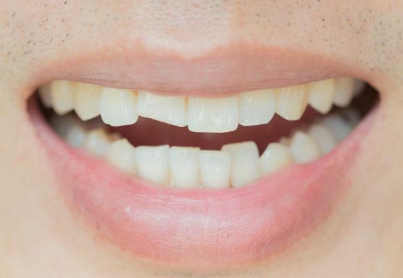 Cómo actuar ante un traumatismo dental