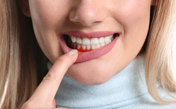 Los riesgos de la enfermedad periodontal
