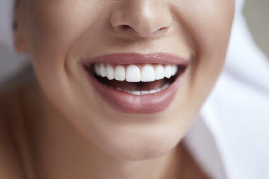 Carillas dentales: qué son y qué opciones existen