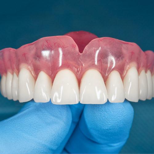 Prótesis y rehabilitación oral